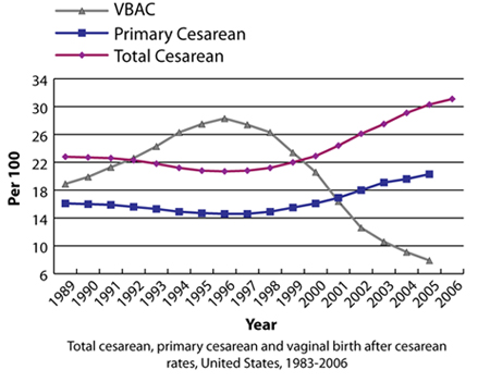 cesarean-vbac-rate-graph