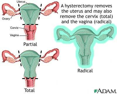 Hysterectomy | Keep Women Healthy